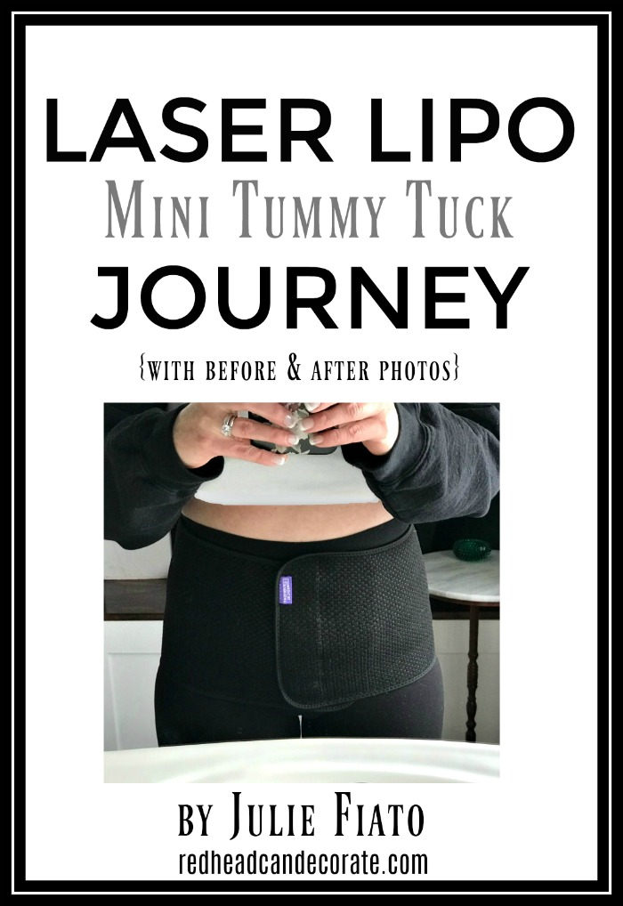 Laser Lipo Journey + Clever and functional DIY Indoor Home Gym ideas for folks who can't go afford, or risk going to their local gym anymore.