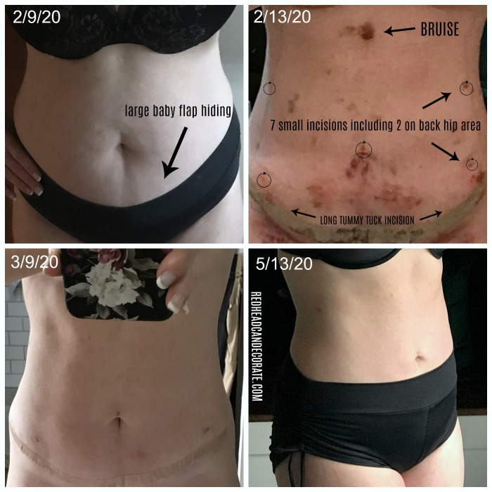 Mom of 2 tells her Laser Lipo/Mini Tummy Tuck Journey with Before & After Photos.  Lots of before and after photos and information you should know before having these procedures.